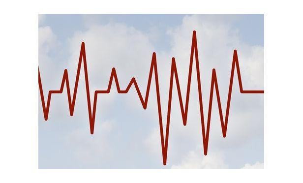 pulse chart