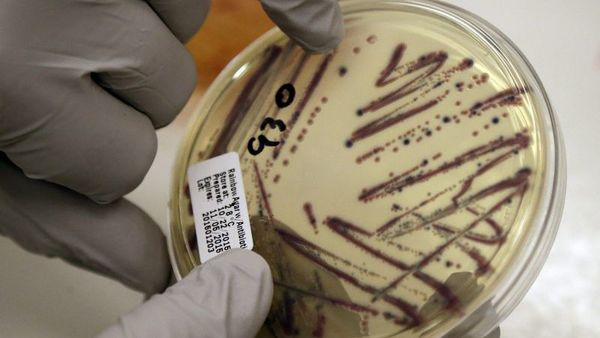 In this Tuesday, Nov. 3, 2015, file photo, a microbiologist points out an isolated E. coli growth on an agar plate from a patient specimen at the Washington State Dept. of Health in Shoreline, Wash.