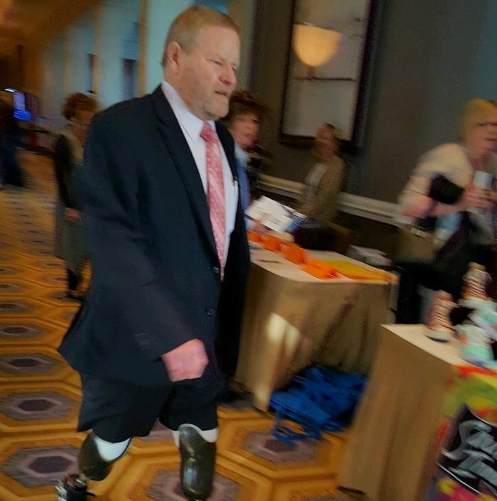 Dwight Johnson on prosthetic legs