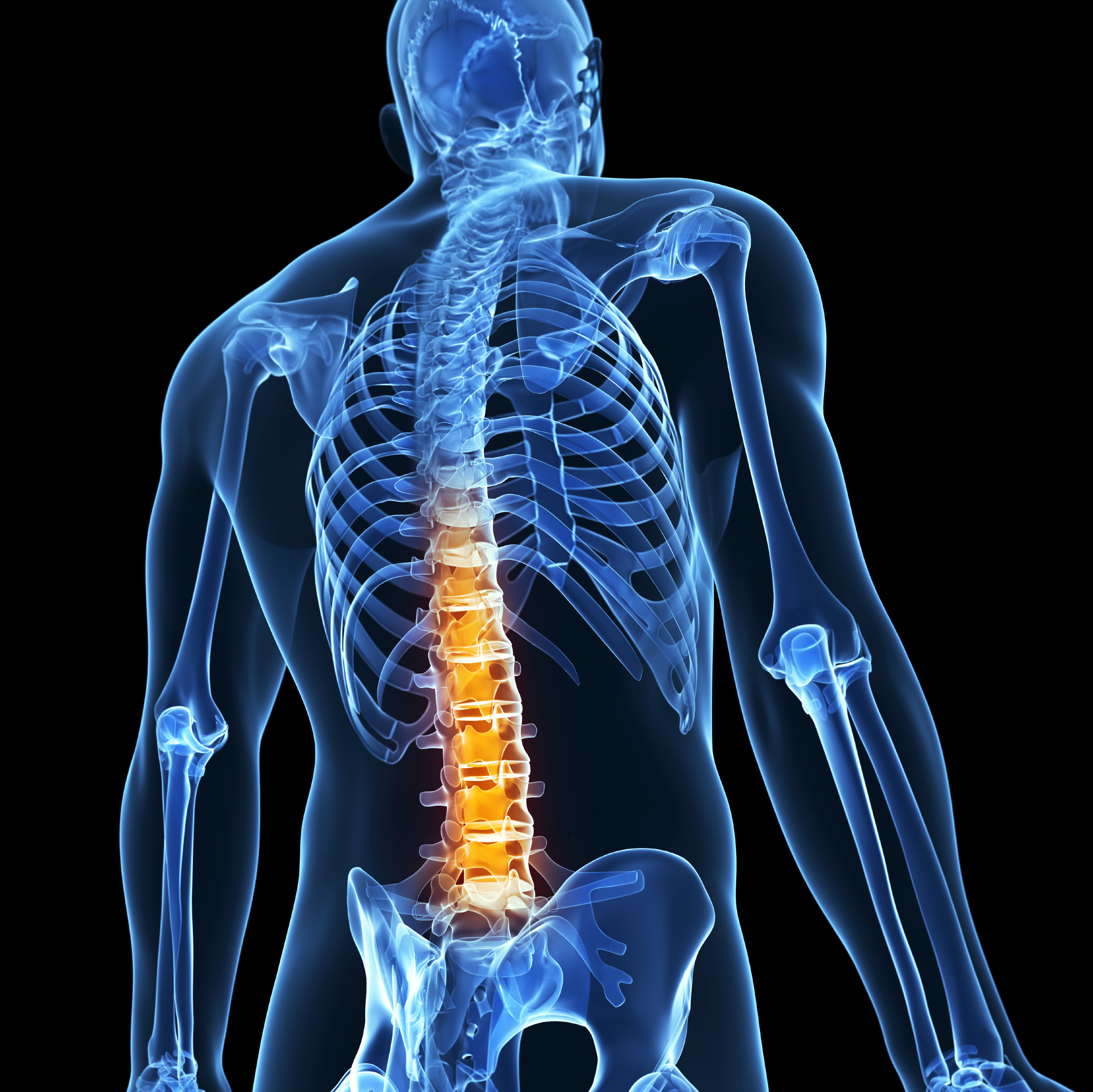 X-ray_spine